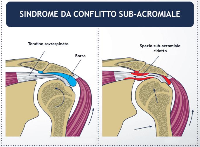 sindrome da conflito sub-acromiale bodybuilding