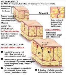 Struttura della cellulite