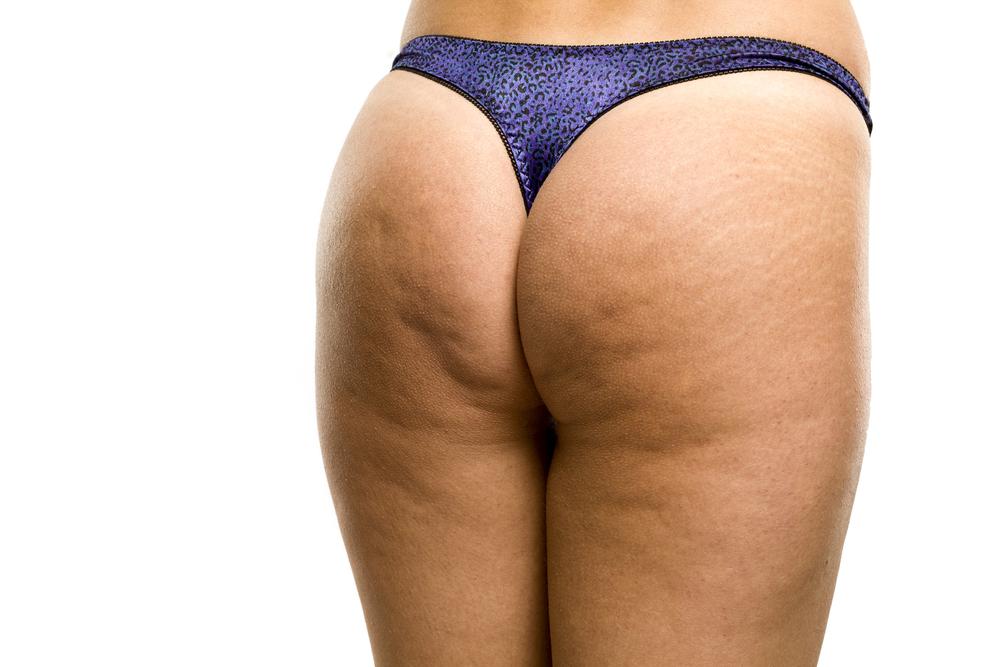 come essere più belle cellulite squat bodybuilding