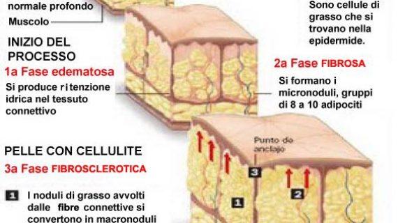 Allenamento al femminile – La cellulite